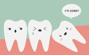 Cartoon of impacted wisdom tooth
